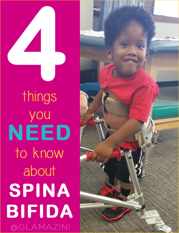 4 things you need to know about spina bifida