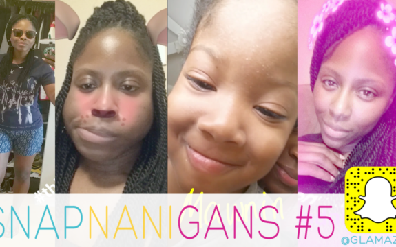 Spina Bifida Frustrations & #WayTooMarried For Bug Removal • Snapchat Vlog [video]
